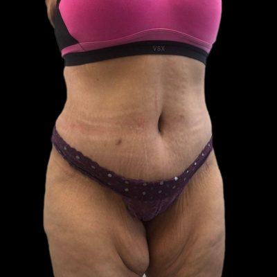 After Extended Tummy tuck
