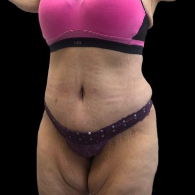 After Tummy Tuck Liposuction