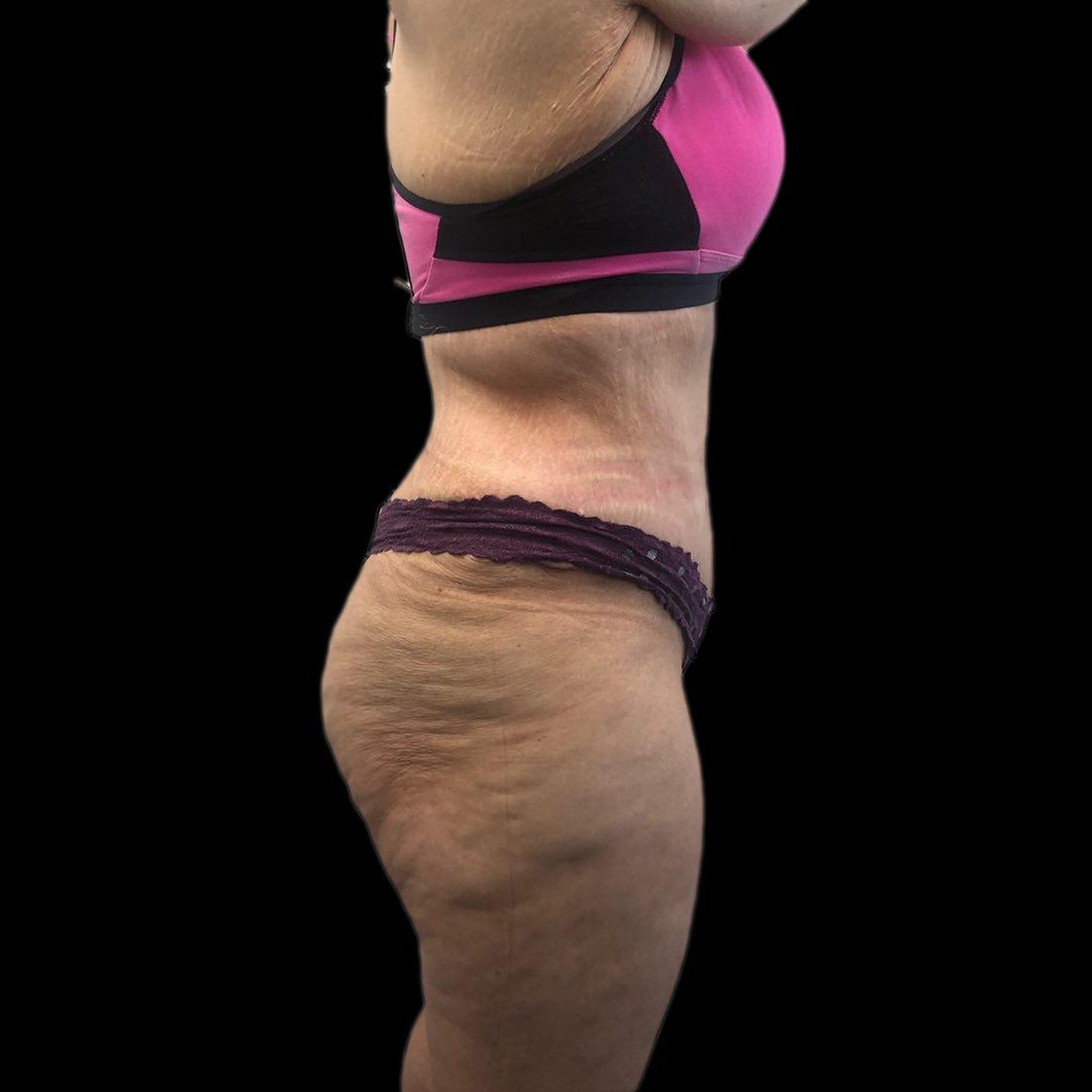 After Extended Tummy tuck, abdominoplasty