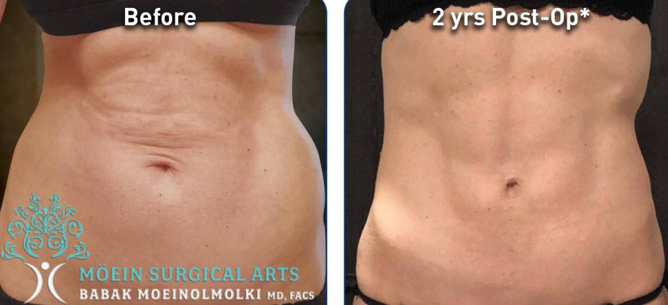 Before and After Renuvion Treatment