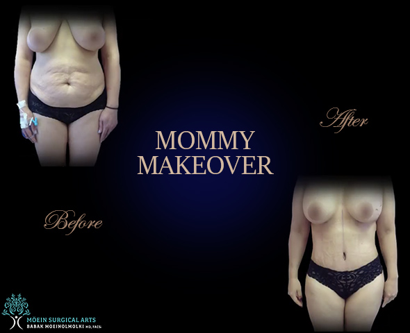 Mammy Makeover Los Angeles
