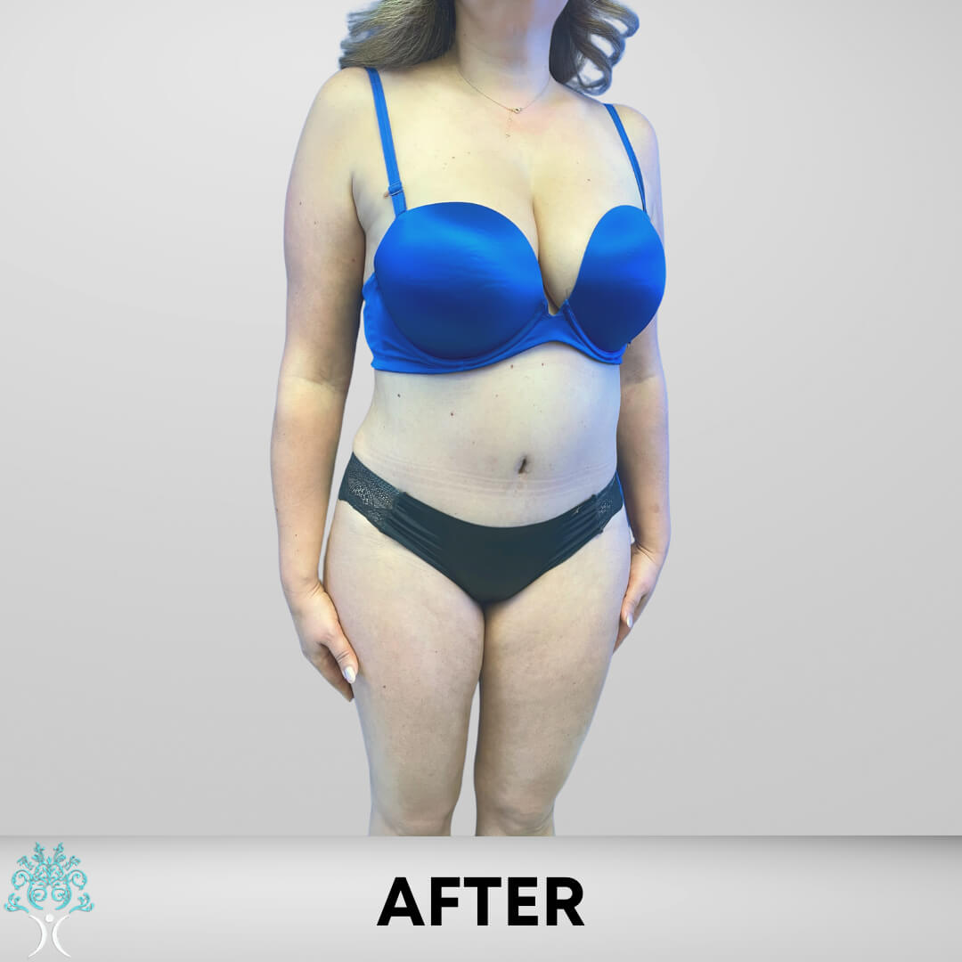 After Lipo and Tummy Tuck