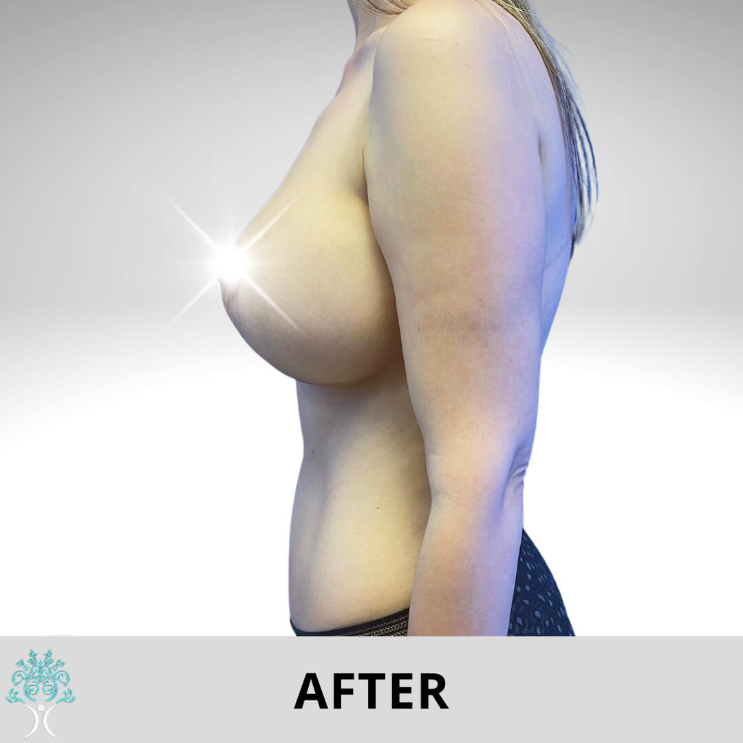 After breast lifte