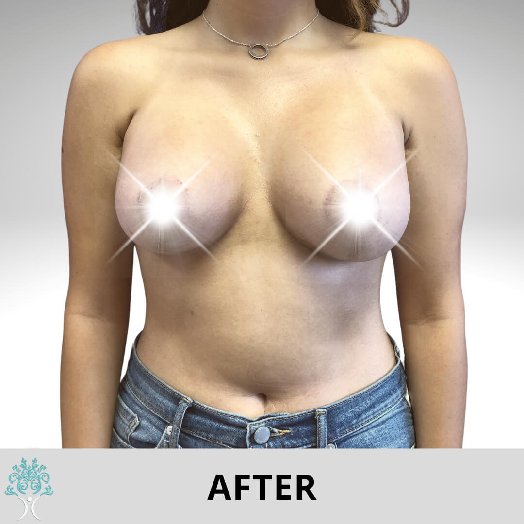 BREAST AUGMENTATION AND LIFT SURGERY AFTER