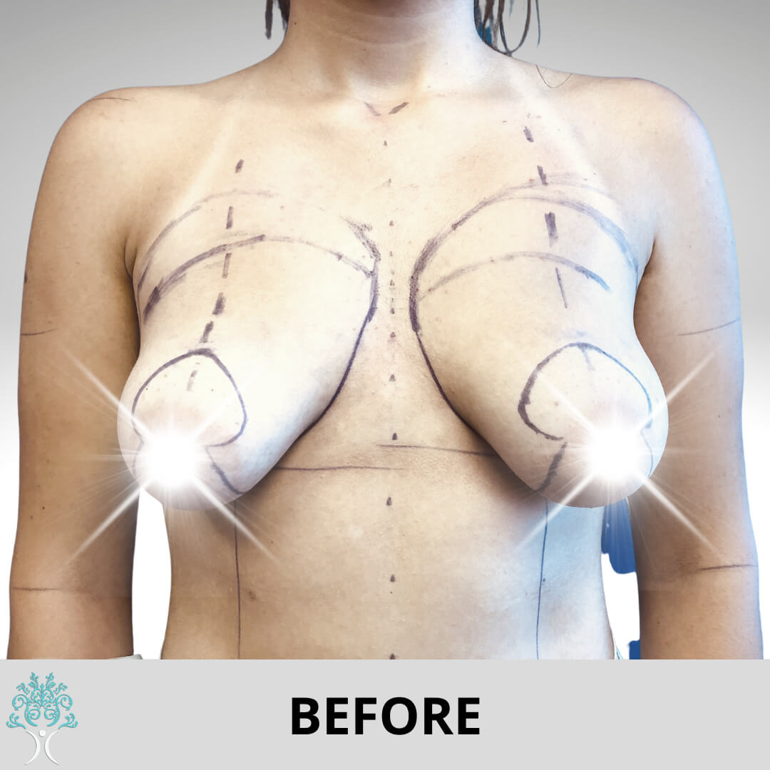BREAST AUGMENTATION AND LIFT SURGERY BEFORE