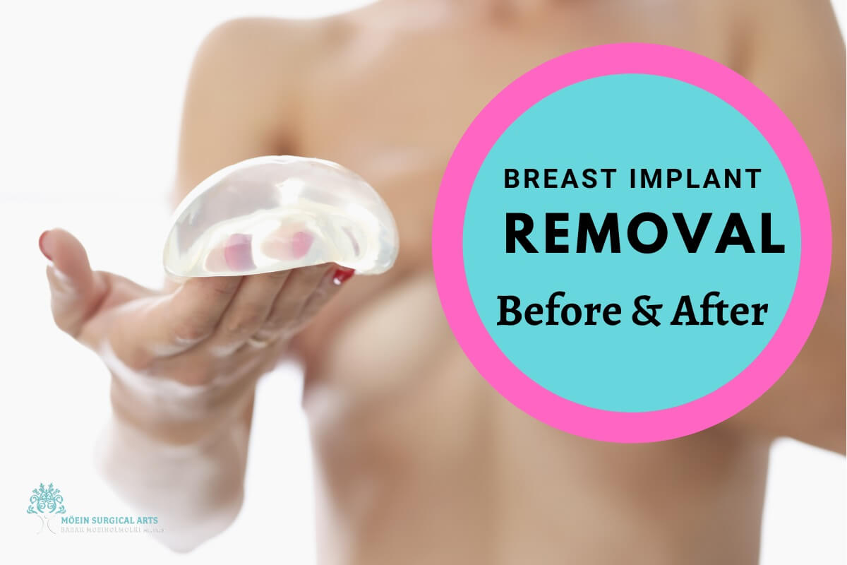 Breast Implant Removal Explained in Los Angeles